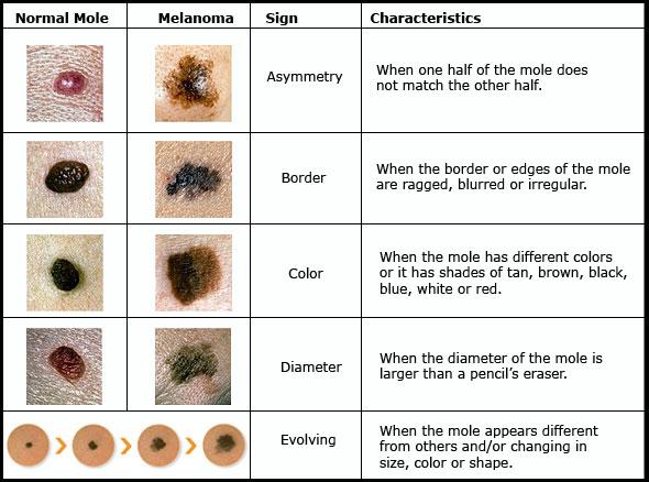 canine lymphoma symptoms